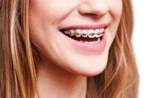 Student with braces treated by best dentist in delhi