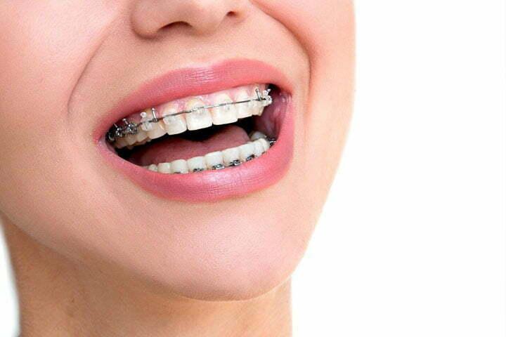 best dentist for braces in South Delhi