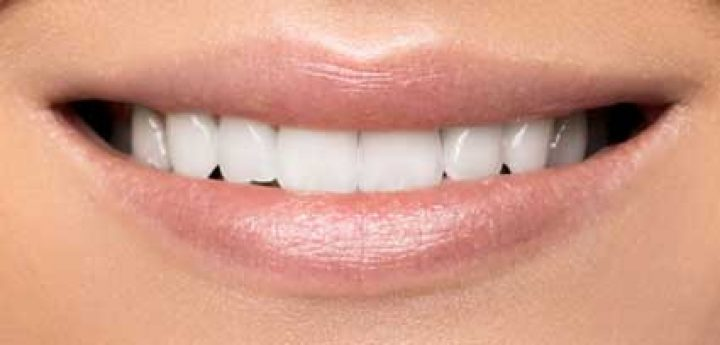 whitening-a